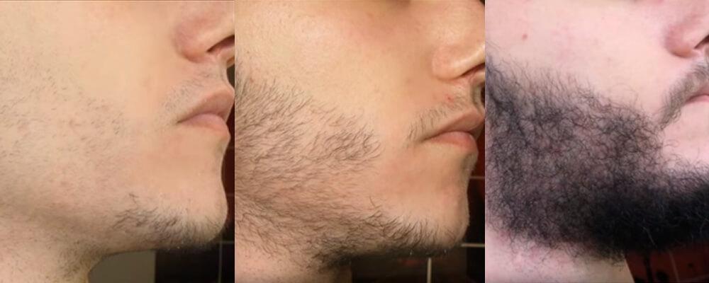 Minoxidil bartwuchs