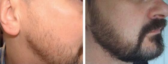 Regaine Männer Schaum Bart