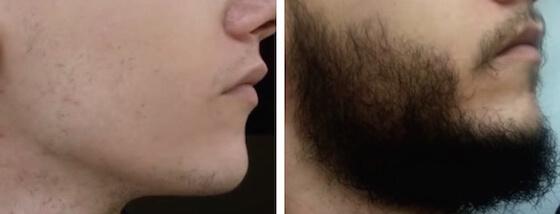 Bartwuchs erfahrungen minoxidil Was bringen