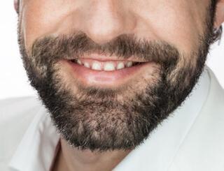 Bartwuchs Mittel
